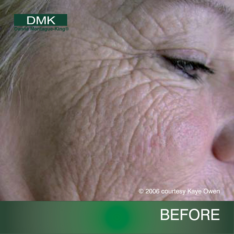 Skinology Beauty Therapy Springwood Dmk Skin Care